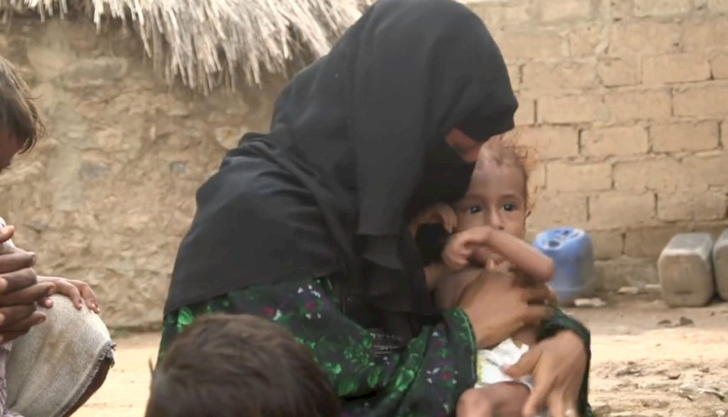 Women and children suffering in Yemen